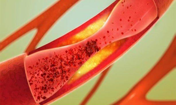 ліпопротеїн