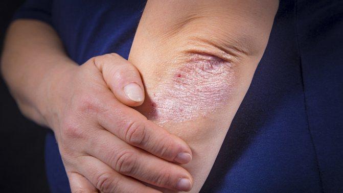 Лишай на тілі людини.  Фото, як лікуваті, препарати, мазі, йод, народні засоби