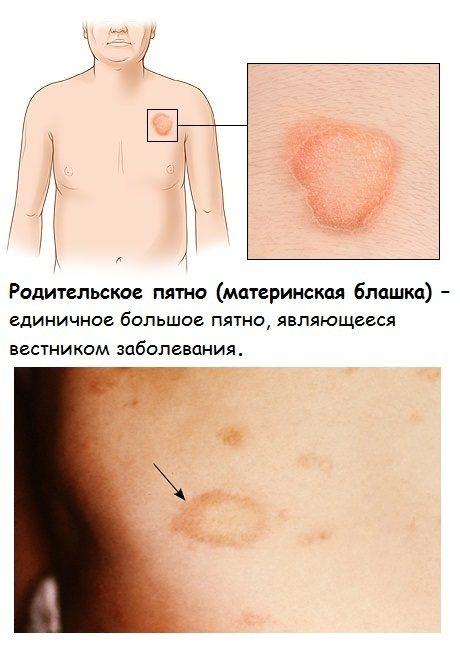 Лишай у дитини.  Фото ознака на тілі, обліччі, Голові, лікування народними засоби, медикаментозно