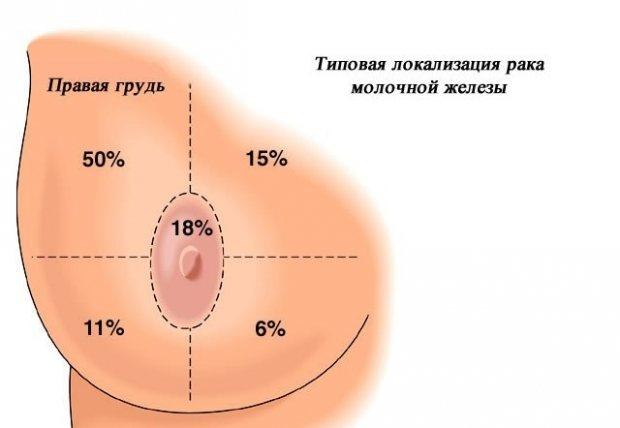 локалізація і симптоми раку молочної залози