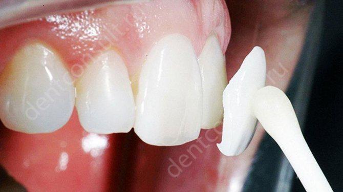 Люмініри на зуби