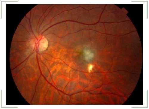 Макулодистрофія сітківки ока