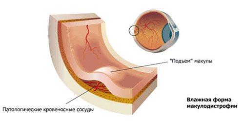 макулодистрофія