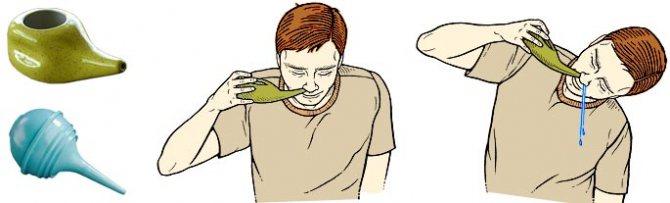 Малаві.  Інструкція по ЗАСТОСУВАННЯ в гінекології.  Склад ліки,! Застосування розчин, крем-гелю