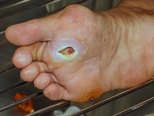 Мазь для гнійних ран: які кошти краще витягують гній, народні рецепти лікування нагноившихся ран