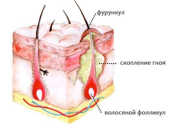 Мазі від фурункулів, прищів на обличчі, з антибіотиком, витягають гній