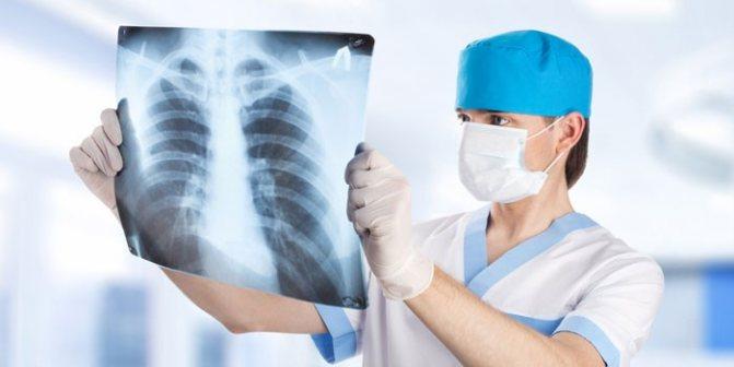 Міді розглядає рентгенівський знімок