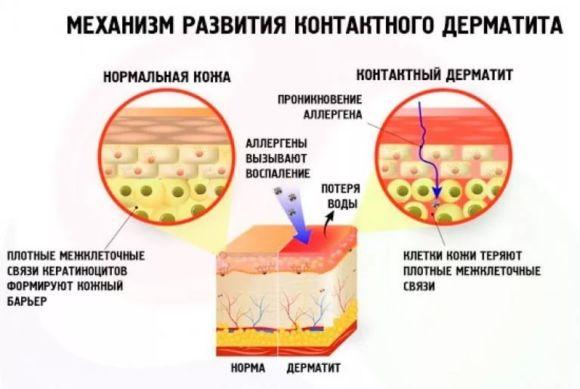 Механізм розвитку контактного дерматиту