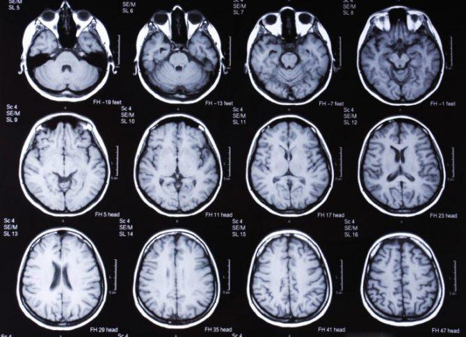 метаболічна енцефалопатія