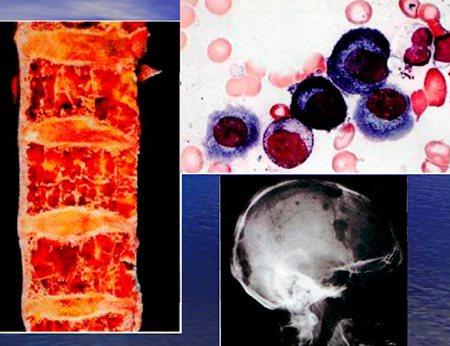 Метастази лейкозів у кістки і картина крові при них
