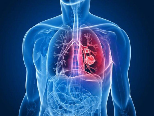 метастази в легенях при раку сечового міхура