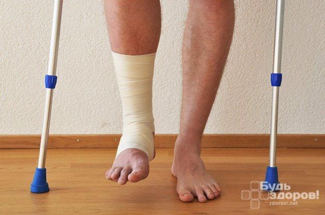 Методи лікування перелому малої гомілкової кістки