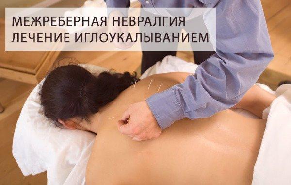 Міжреберна невралгія - симптоми і лікування в домашніх умовах
