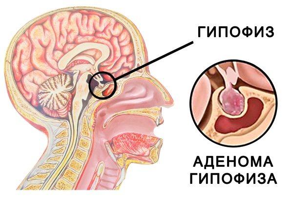 Мікроаденома гіпофіза. Симптоми у жінок, що це таке, лікування, прогноз, наслідки