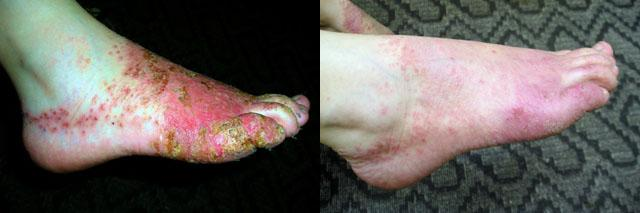 мікробна екзема на ногах