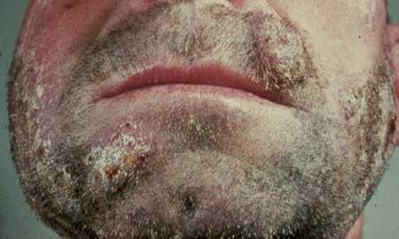 Мікроспорія на бороді