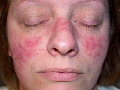 Мікроспорія на обличчі