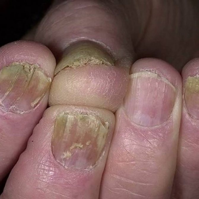 мікроспорія нігтів