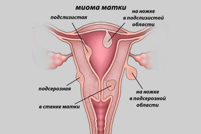 міома матки