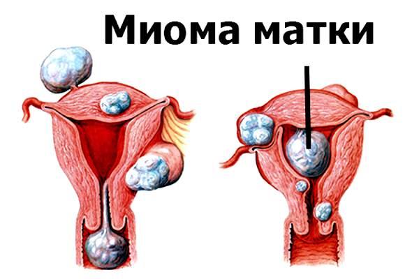 міома