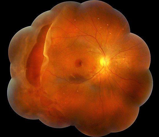 Множінні пошкодження сітківкі внаслідок тупої травми ока