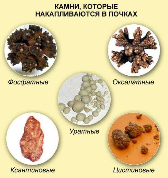 Мочекам'яна хвороба. Симптоми і лікування у жінок травами, ліки, дієта. Як зняти напад в домашніх умовах
