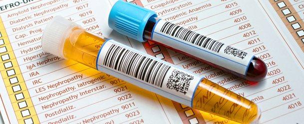 Сечова кислота в крові, норма у чоловіків і жінок після 40, 50 років