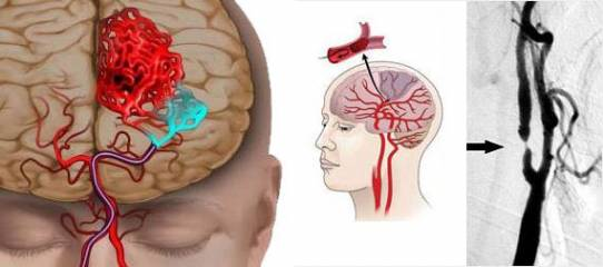 мозок вражений