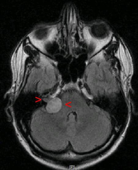 МРТ головного мозку. Невринома слухового нерва вказана стрілками