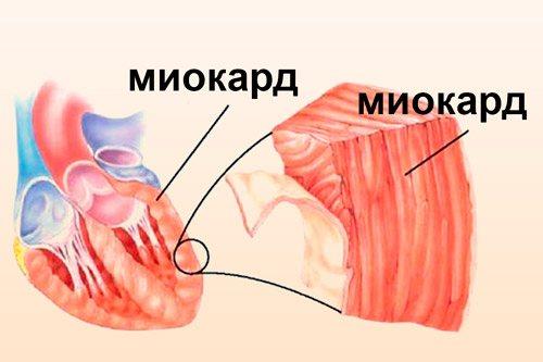 М'язова стінка серця