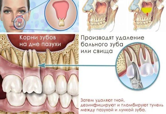 На фото коріння зубів на дні пазухи