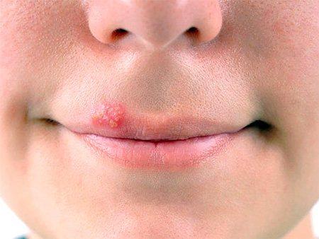 На губах у дівчини