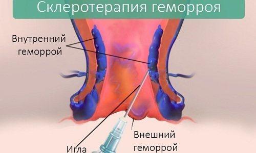 На початкових стадіях геморою використовують процедуру склерозування