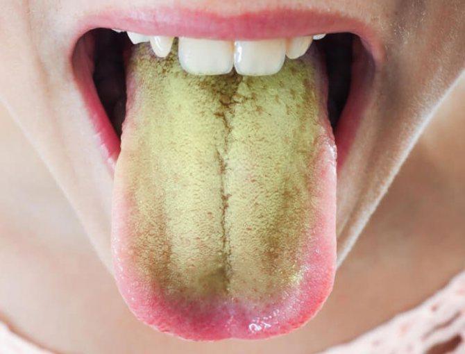 Мовою жовтувато-зелений наліт