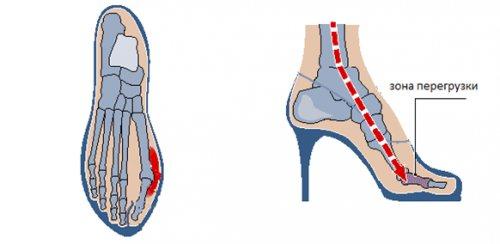 НАВАНТАЖЕННЯ на суглоб великого пальця стопи при носінні взуття на підборах