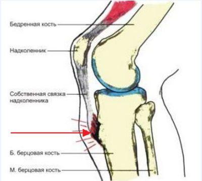 Наріст на колінної чашечки