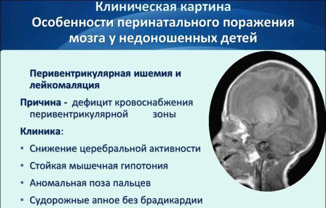 Порушення у функціонуванні головного мозком у дитини.