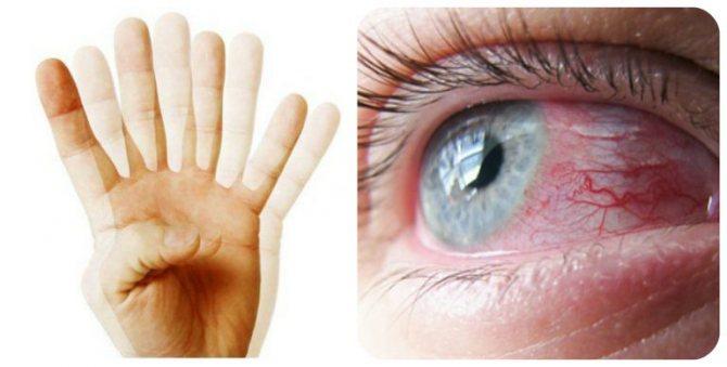 Нечітке зір, двоїння в очах