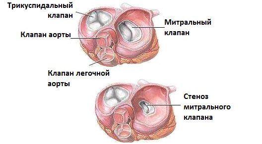 Недостатність мітрального клапана