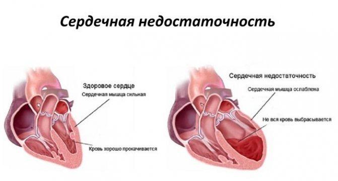 Шлюб заліза в організмі у жінок.  Причини, симптоми и лікування