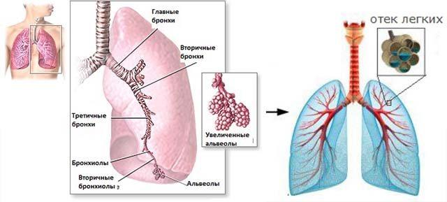 некардіогенний набряк легенів