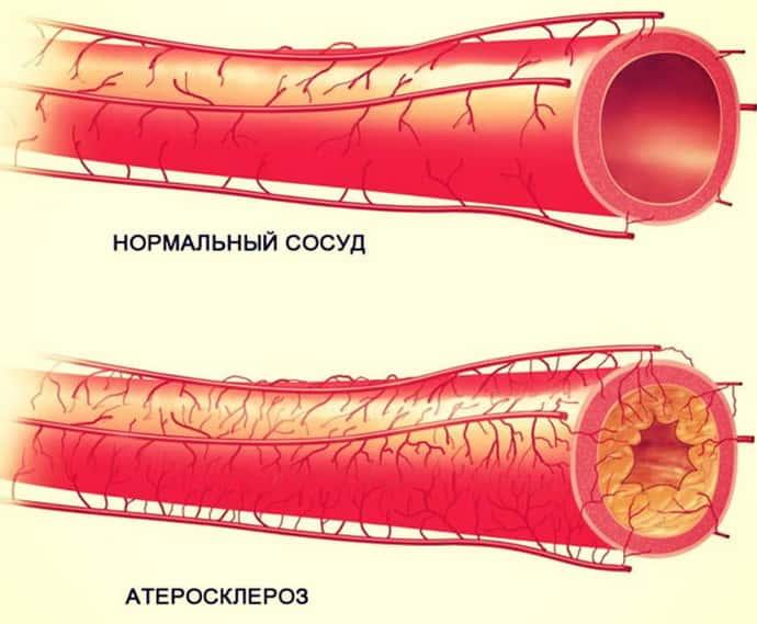 німіє ліва рука при атеросклерозі