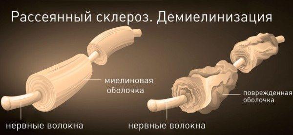 Німіють пальці рук: причина і лікування: великий, мізинець, безіменний, вказівний на лівій і правій руці. З яким захворюванням пов'язано