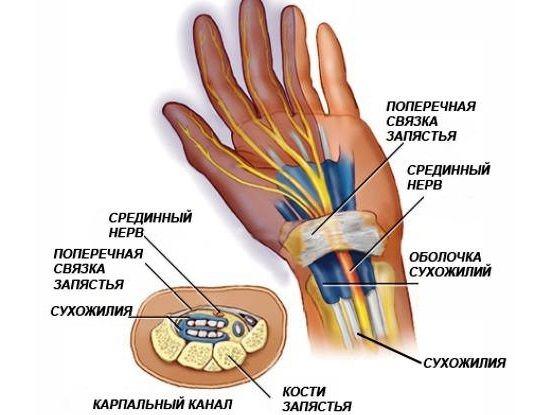 Німіють руки ночами. Причини під час сну, що робити, як лікувати, до якого лікаря звернутися