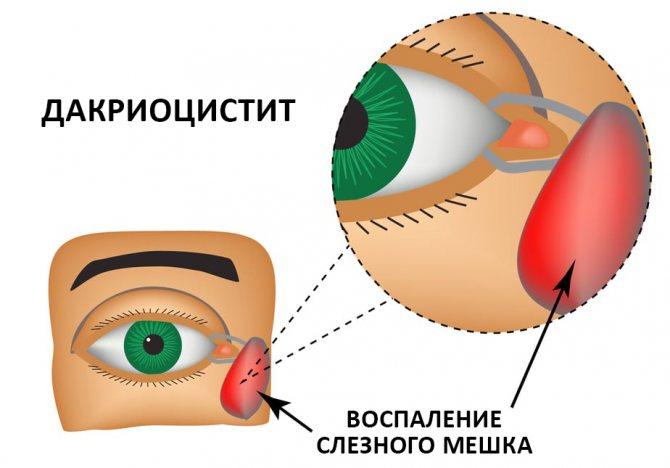 непрохідність слізного каналу