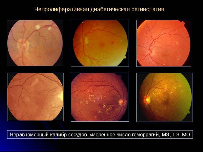 непролиферативная діабетічна ретінопатія