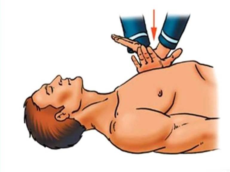 Непрямий масаж серця