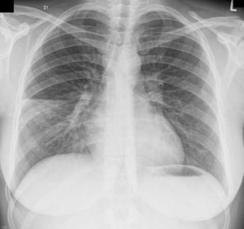 Нерідко пневмонія є тим провокуючим фактором для ускладнення перебігу ЦД.