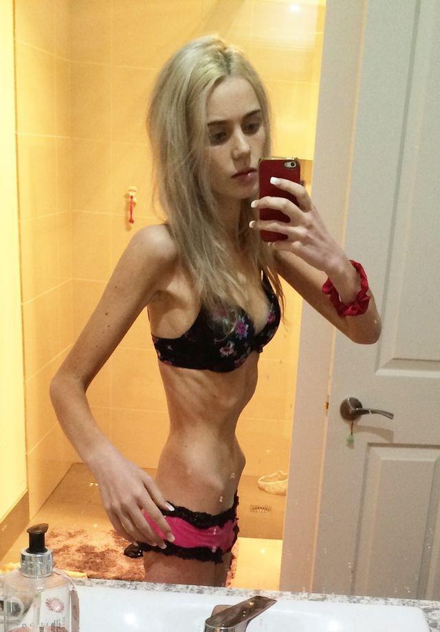 Нервова анорексія обумовлена бажанням схуднути або страхом набрати зайві кілограми.