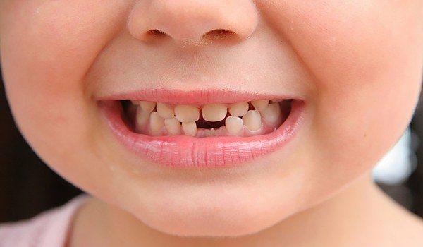 несвоєчасне з'явилися молочних зубів